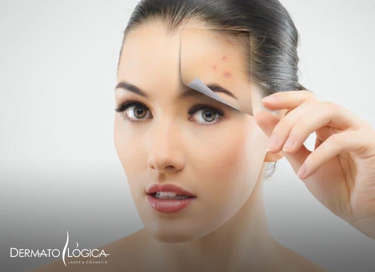 Mi franquicia - Dermatológica tratamiento piel